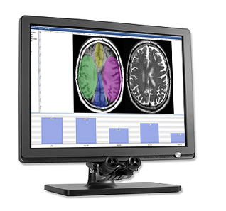 Eye tracker - our state-of-the-art eye tracking devices